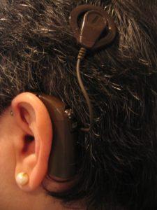 foto implante coclear