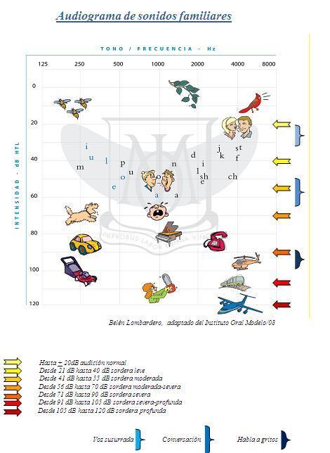 signos y sintomas de hipoacusia en niños