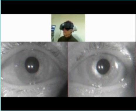 estudio-ocular-mareo